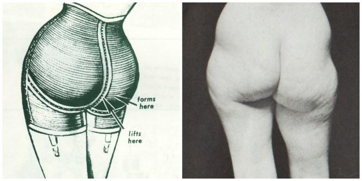 Female Bottom Enhancements