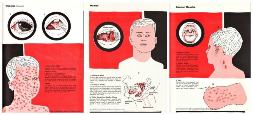 Vintage Illustrations childhood diseases Measles Mumps Rubella