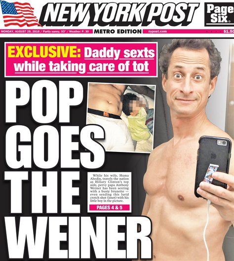 Anthony Weiner NY Post