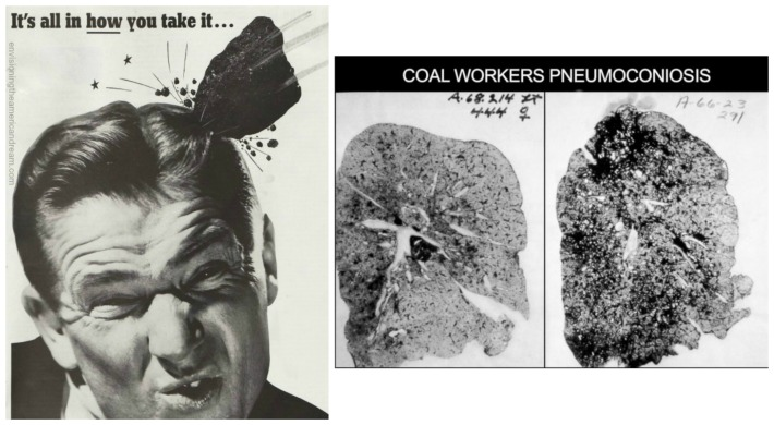 Man beong hit with lump of coal and black lung