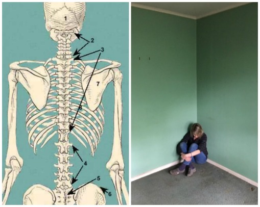 Collage Human Skeleton and woman sitting in a corner